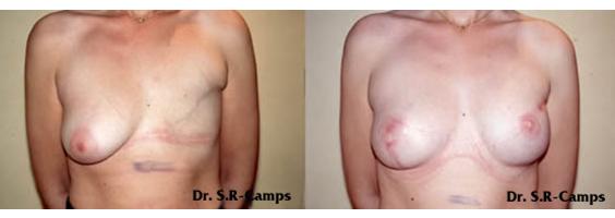 Mamoplastia Reconstructiva Clínica Rodríguez-Camps