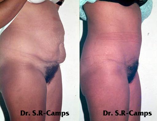 Abdominoplastia|Clínica Rodríguez-Camps