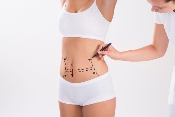 Corregir la flacidez muscular del vientre: Abdominoplastia|Clínica Rodríguez-Camps