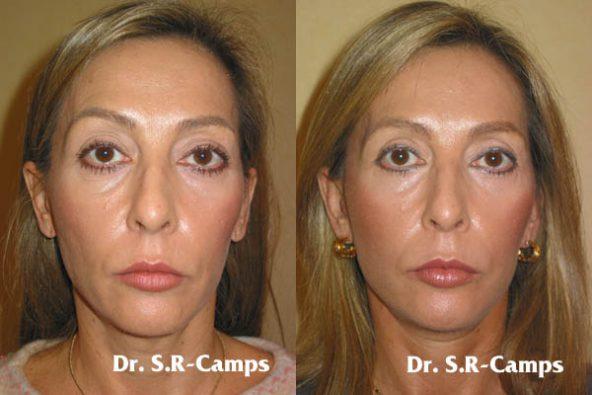 Lifting Facial Valencia|Clínica Rodríguez-Camps