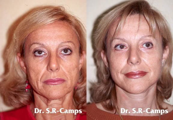 Lifting Facial Rodriguez Camps