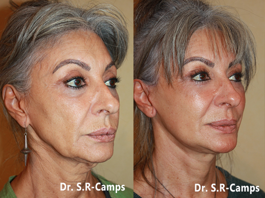 Lifting Facial Valencia Antes y Despues 14-12-2017b