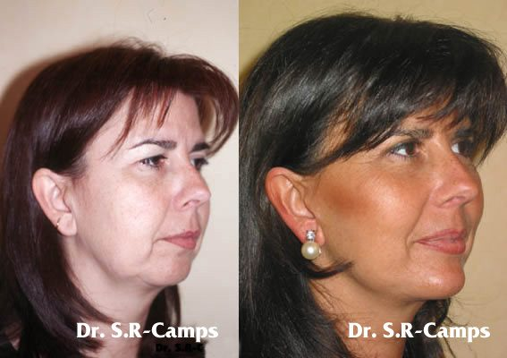 La evolución del Lifting Facial