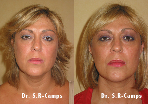 Lifting facial valencia