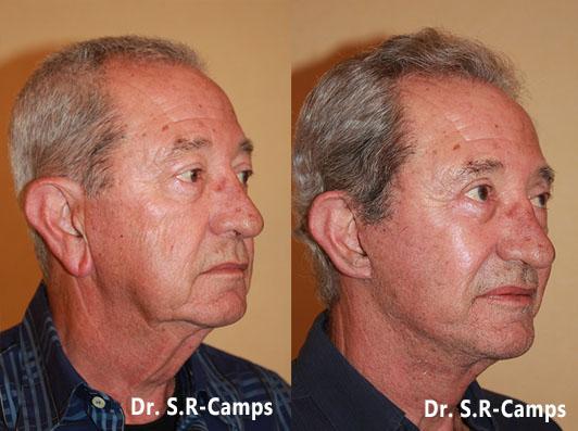 antes y despues Lifting facial valencia