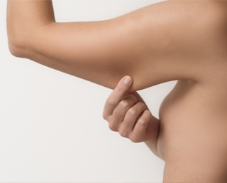 braquioplastia, cirugía corporal