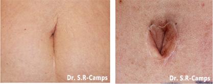cicatrices antes y después