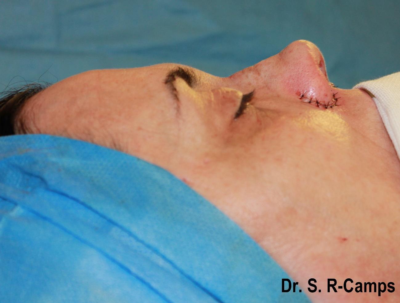 rinoplastia valencia antes despues