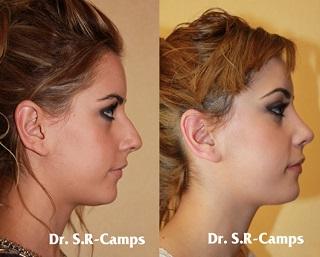 Imagen de una rinoplastia de nariz antes y despues