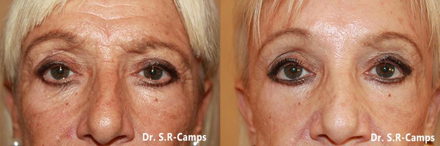 Lifting facial Antes y Despues clinica rodriguez camps valencia