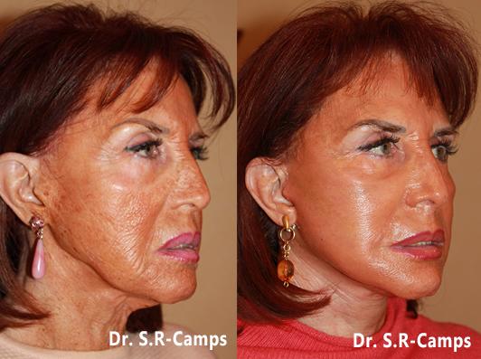 lifting facial antes y despues salvador camps