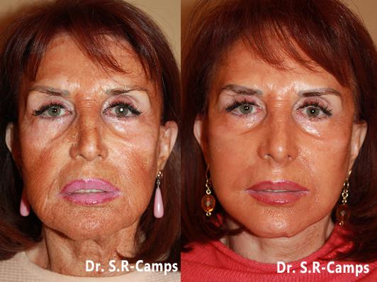 lifting facial antes y despues