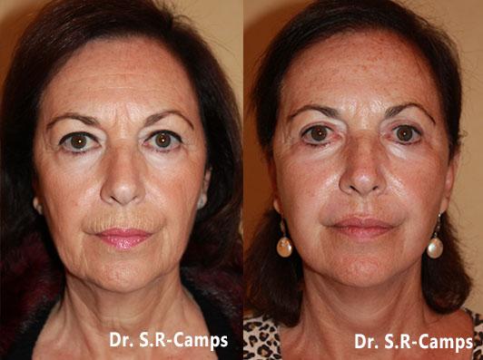 Lifting facial valencia antes y despues