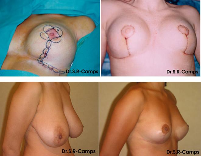 Mamoplastia de reducción antes y depués Clínica Rodríguez-Camps