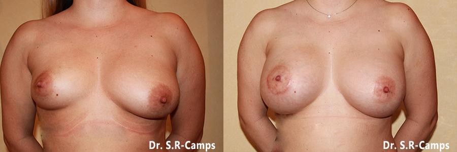 mamoplastia antes y despues