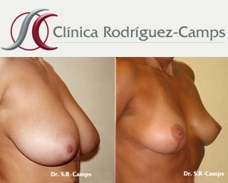 mamoplastia-reduccion-valencia-t