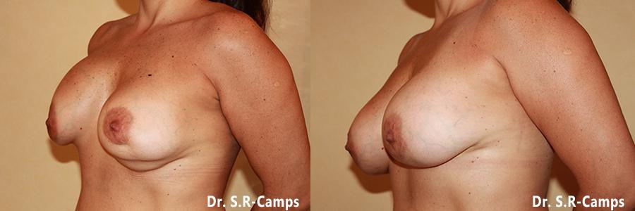 mamoplastia valencia antes y despues