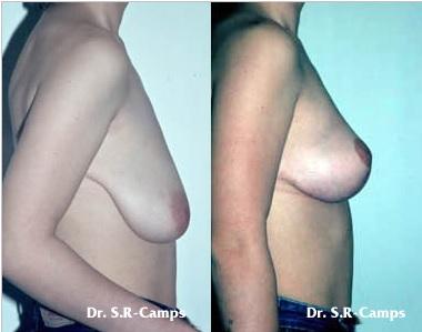 mastopexia- dr rodríguez camps