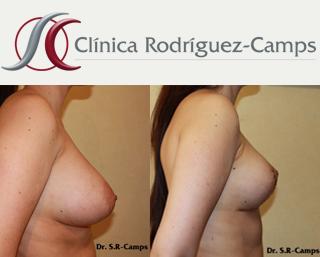 tipos mamoplastia y sus beneficios