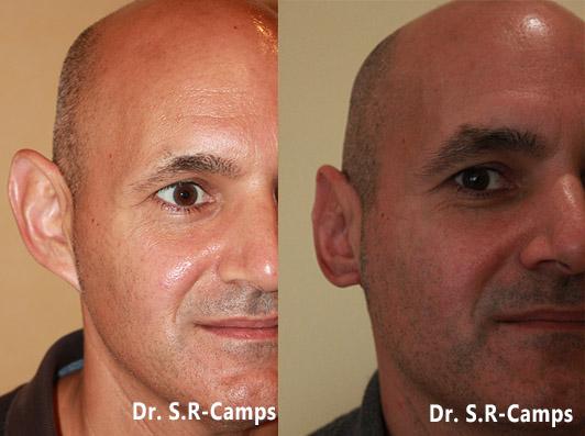 otoplastia antes y despues
