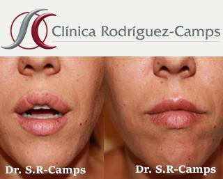 Queiloplastia, Cirugía Estética Facial