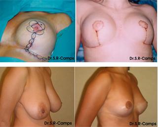 Mamoplastia de reducción antes y depués|Clínica Rodríguez-Camps