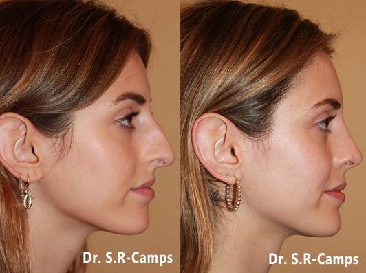 Rinoplastia antes y despues (1)