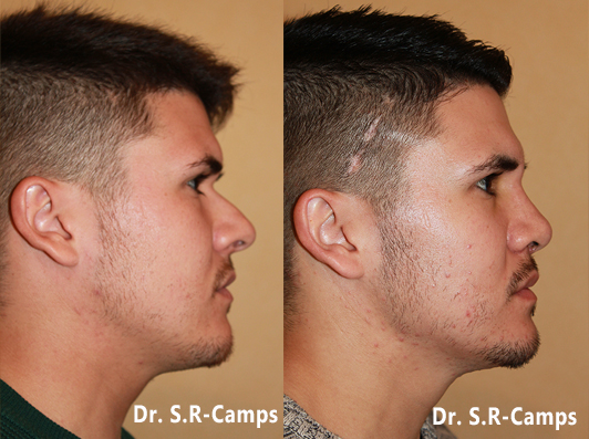 Rinoplastia antes y despues