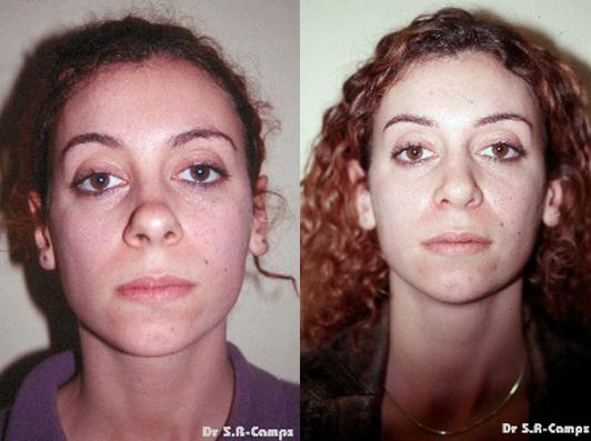 Rinoplastia antes y despues 1