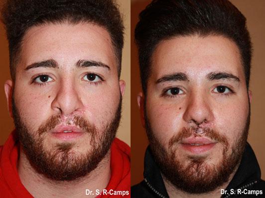 Rinoplastia antes y despues frente