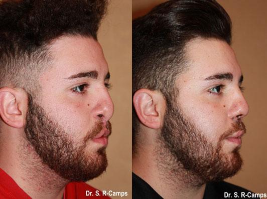 Rinoplastia antes y despues perfil