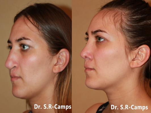 rinoplastia valencia antes y después