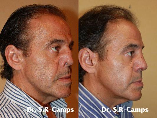 rinoplastia españa rodriguez camps