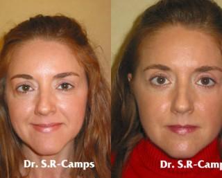 Blefaroplastia Cirugía de resultados espectaculares