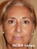 Blefaroplastia Antes y Despues 2018-09-28 Valencia