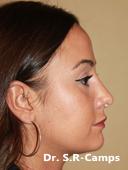 Cirugia Nasal Antes y Despues 6-11-2017