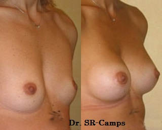 Posición de los implantes mamarios en la Mamoplastia de aumento: Ventajas e Inconvenientes|Clínica Rodríguez-Camps
