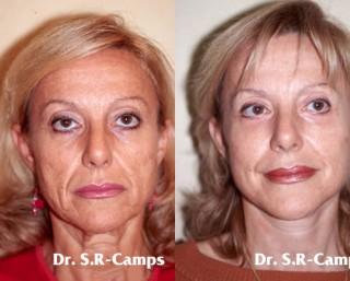 Lifting Facial Rodriguez Camps