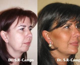 Lifting Facial Valencia | La belleza de la mujer a partir de los 40