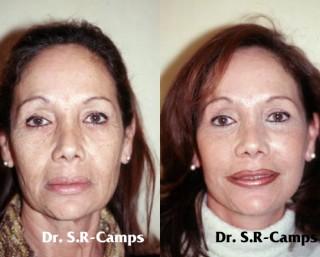 Lifting facial postoperatorio y recuperación