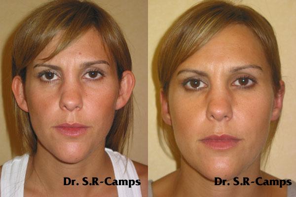 Dr. Rodríguez-Camps | Otoplastia | Antes y Después