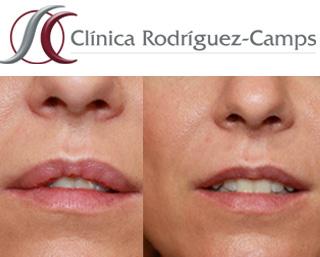 Queiloplastia antes y después|Clínica Rodríguez-Camps
