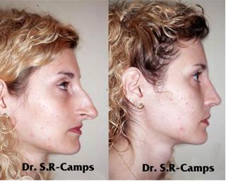 Rinoplastia antes y después Clínica Rodríguez-Camps