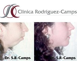 Perfiloplastia|Clínica Rodríguez-Camps