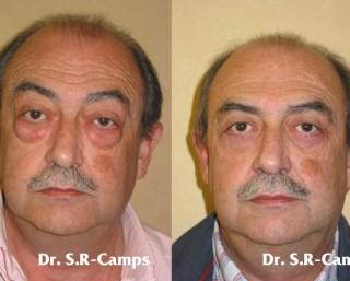 Blefaroplastia Postoperatorio y recupración|Clínica Rodríguez-Camps