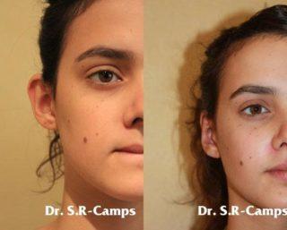 ¿Es la cirugía plástica en la adolescencia un capricho o una necesidad?