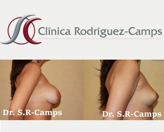explante mamario