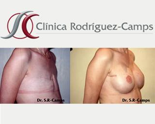 mamoplastiareconstructiva