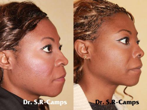doctor camps rinoplastia valencia nariz ancha