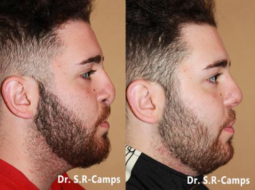 rinoplastia-antes-y-despues hombres doctor camps